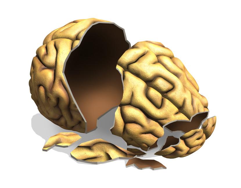 דלקת המוח