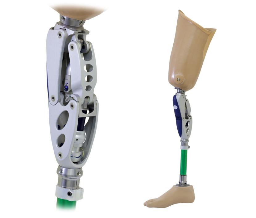 אובדן גפיים