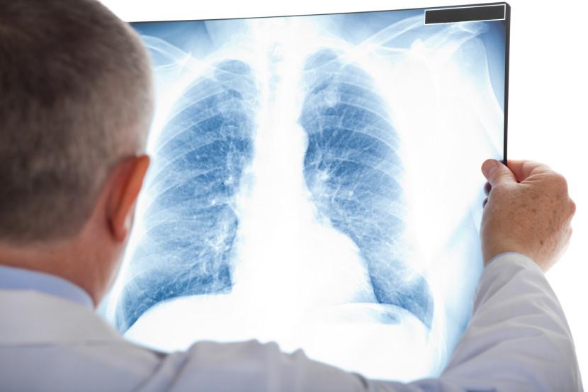 מחלת ריאות כרונית וסופנית