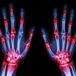 arthritis at multiple joint of hands (Gout,Rheumatoid)