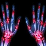arthritis at multiple joint of hands (Gout,Rheumatoid)