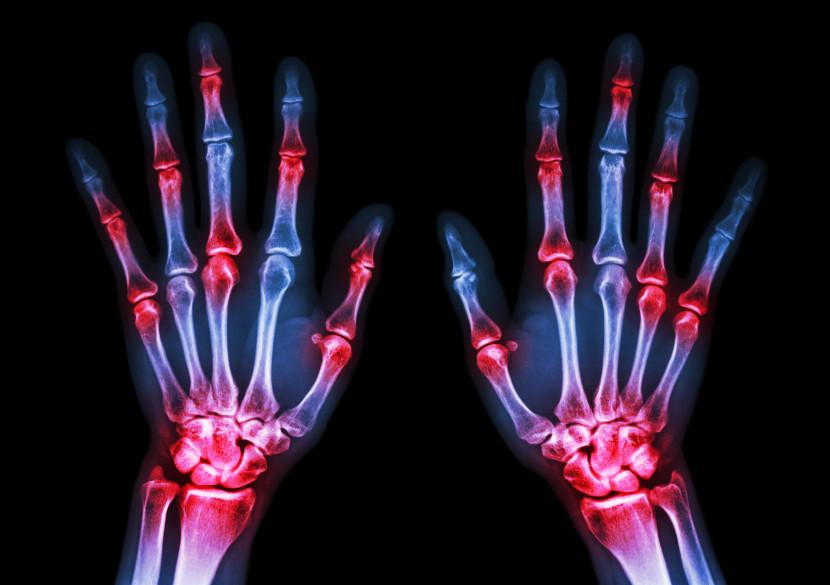 ראומטיזם – דלקת מפרקים שיגרונית