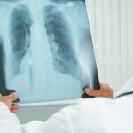 צילום של חולה במחלת ריאות סופנית