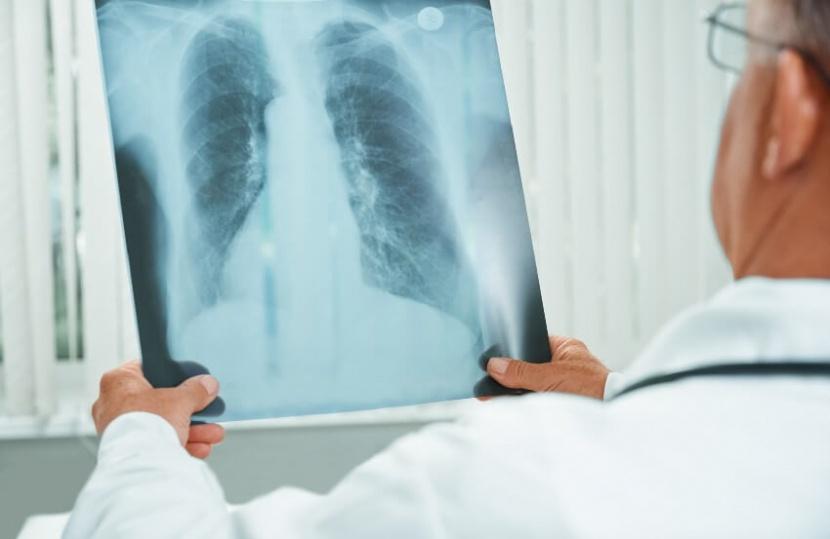 זכויות לסובלים ממחלת ריאות כרונית וסופנית